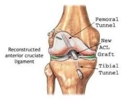 Image result for acl graft