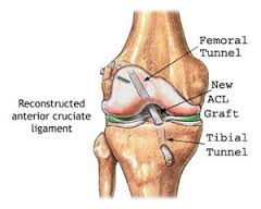 Choosing an ACL graft