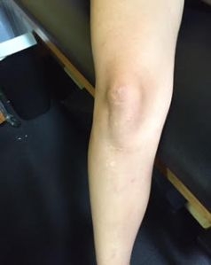 Knee ACL patellar tendon 3