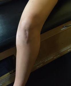 Knee ACL patellar tendon