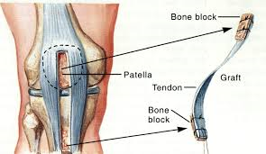 What Happens to the Patellar Tendon Gap After ACL Harvest?…and other common ACL questions.