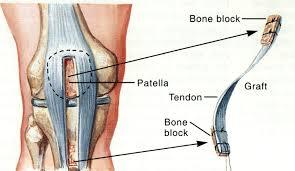 patellar tendon