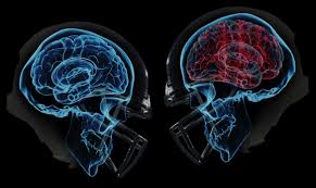 Lower Extremity Injury Risk Following Concussion