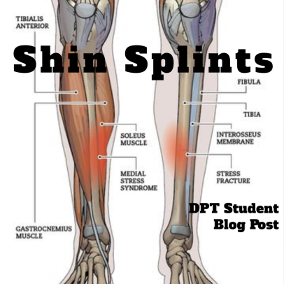 What Are Shin Splints Chris Butler Sports Pt