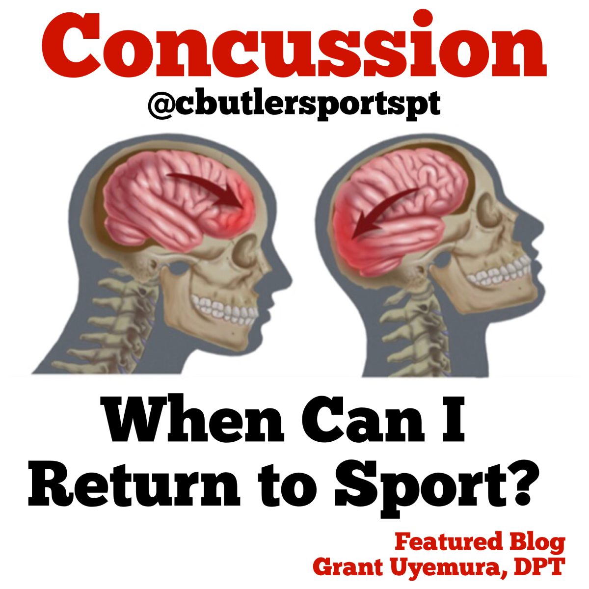 Concussion: When Can I Return to Sport?