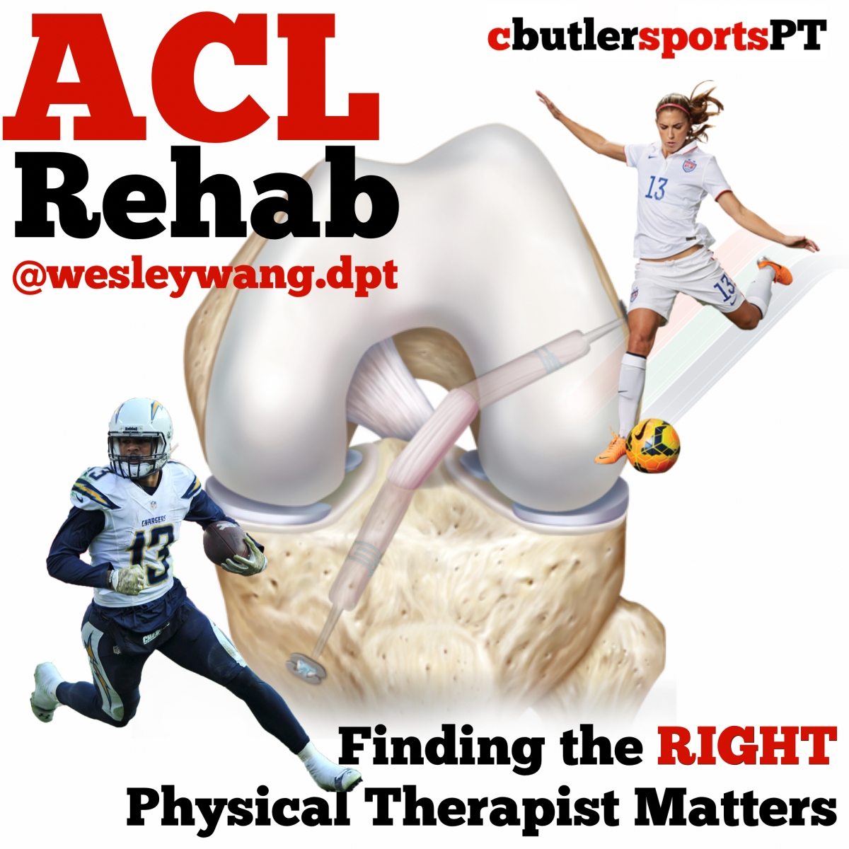 ACL Rehab – Finding The Right Physical TherapistMatters