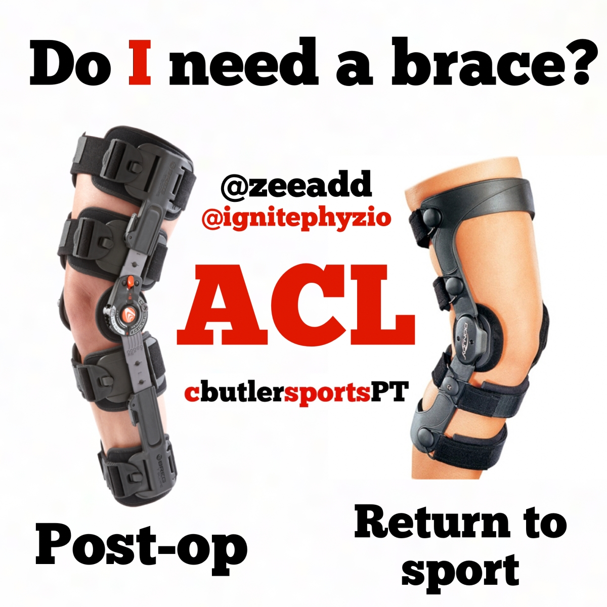 Do I Need a Brace After ACL Surgery?